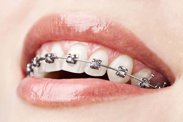 specialista ortodonzia